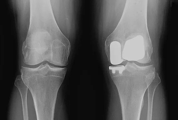 X-ray of a knee after bicompartmental partial knee replacement.