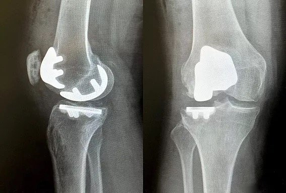X-rays of a knee after lateral and patellofemoral partial knee replacement.