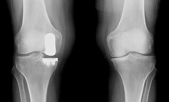 X-ray of a knee after medial partial knee replacement.