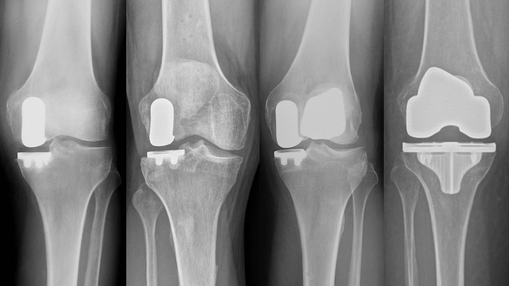 Partial and Total Knee Replacement X Ray
