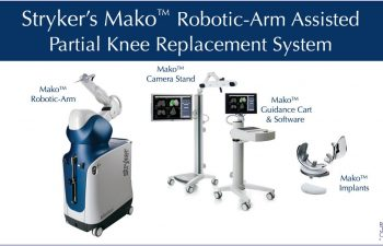 Mako™ Robotic Partial Knee Replacement System used by Dr. Buechel