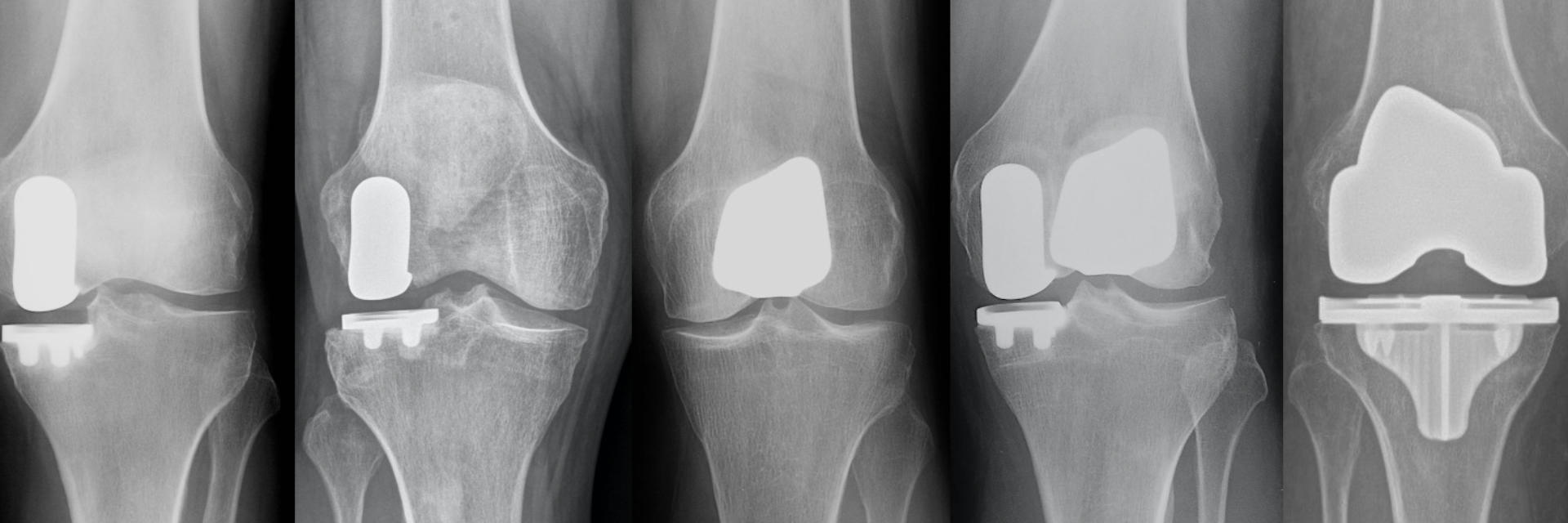 X rays of knee joints after partial and total knee replacements