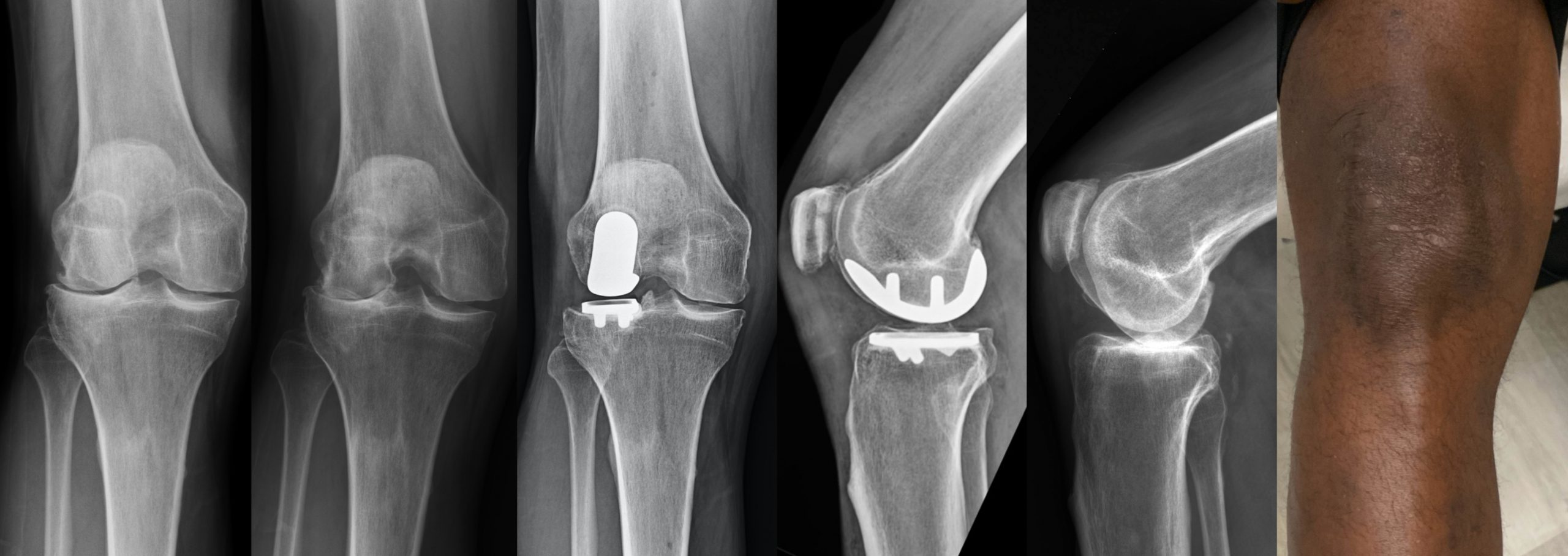 x-rays of a patient's knee before and after lateral partial knee replacement