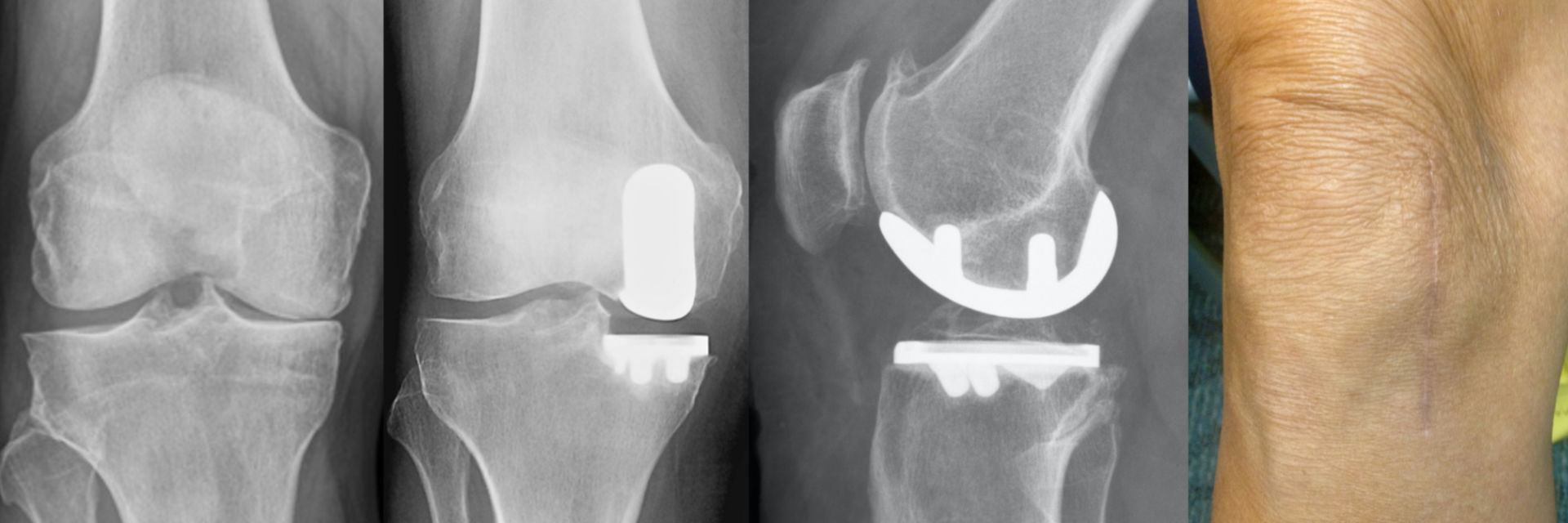 X-rays of patient's knee before and after medial partial knee replacement surgery.