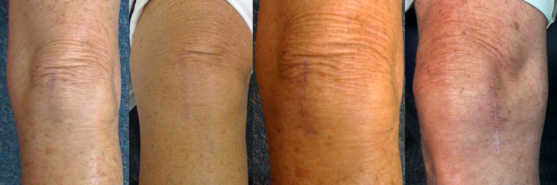 Patients' knees after medial partial knee replacement surgery.