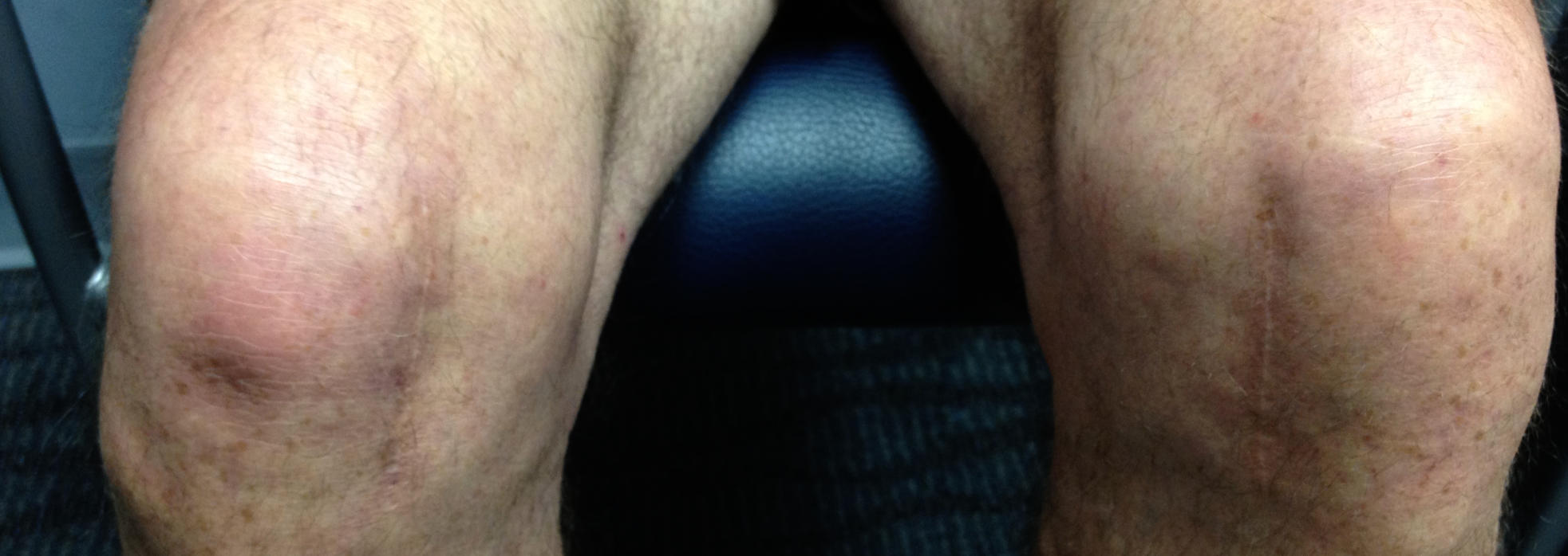 Healed knees of a patient after robotic knee surgery