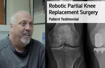 Robotic Partial Knee Replacement Surgery Patient Testimonial