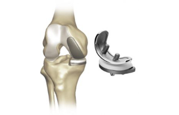 partial knee replacement implant