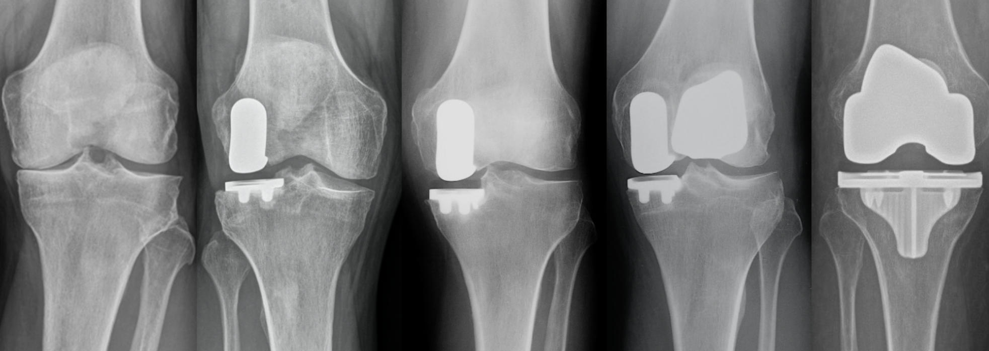 X-rays of knee joint before and after robotic knee replacement surgery