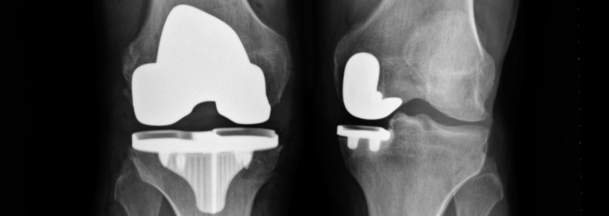 X-ray of a knees after robotic knee replacement surgery