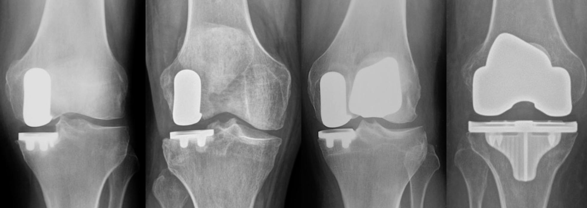 X-rays of a knee joint after robotic knee replacement surgery