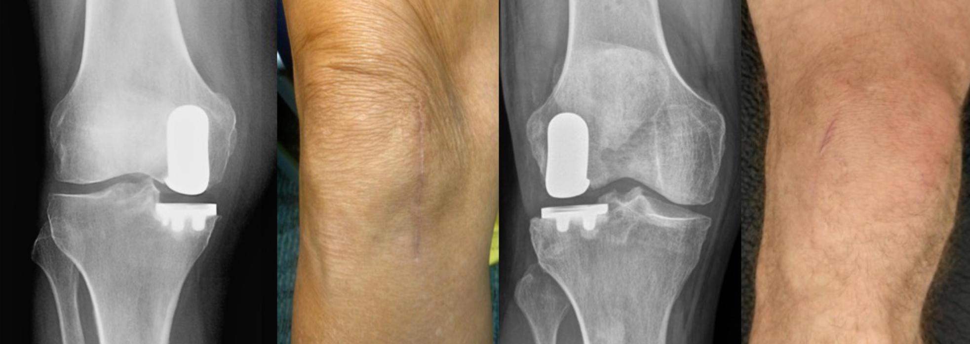 Patients' knees after Mako Robotic knee replacement surgery