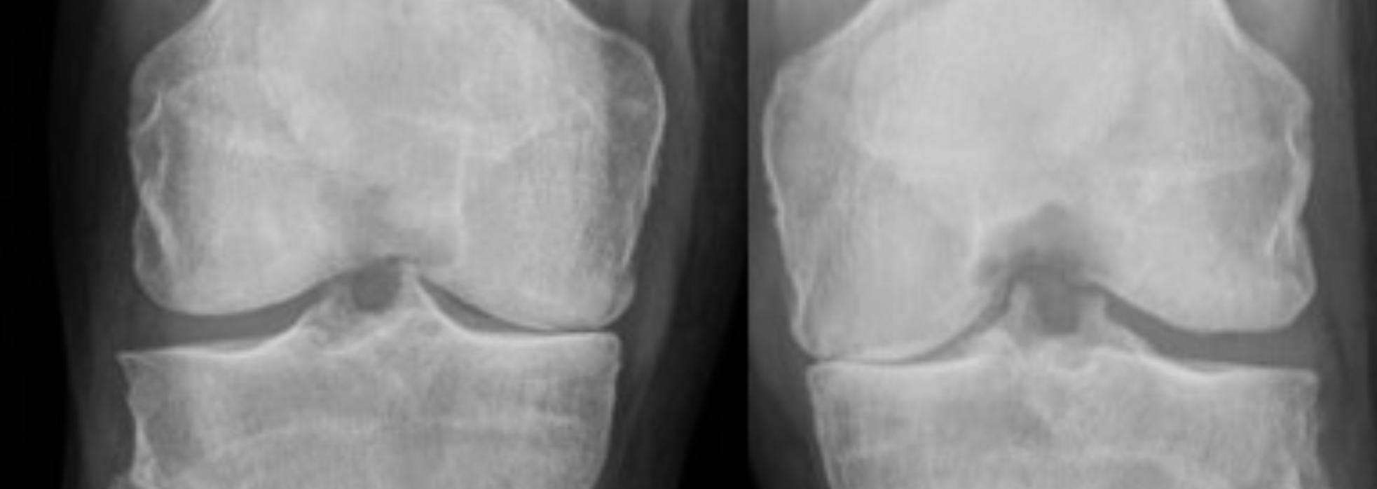 knee x-rays