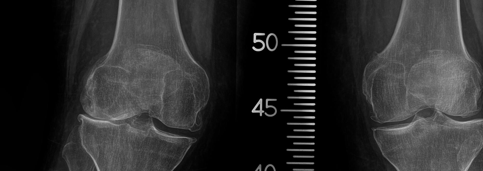 x-rays of knee osteonecrosis